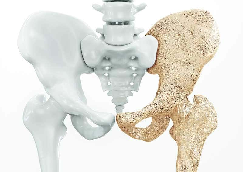new-study-shows-long-term-sleep-deprivation-could-lead-to-osteoporosis.jpg